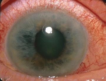 Oko z jaskrą